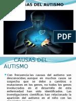Causas Del Autismo