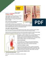 Acidez Gástrica o Reflujo Gastroesofágico