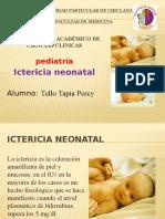 Seminario de Ictericia Neonatal