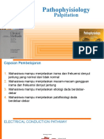 4 Pathofisiologi Palpitation.4.1