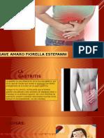 La Gastritis Gave Amaro Fiorella