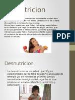Malnutricion desnutricion