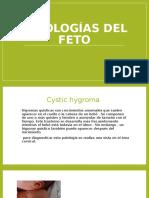 patologias del feto dos