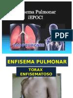 enfisema pulmonar