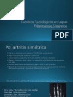 Cambios Radiológicos en LES
