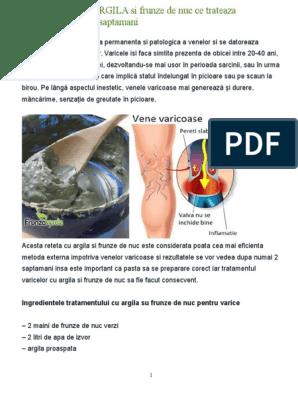 varicoză picior și argilă