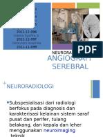 angiografi serebral baru