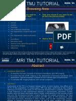 MRI TMJ TUTORIAL.pps