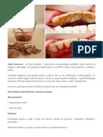 Kako Ukloniti Zubni Kamenac Pomoću Jednog Sastojka - Dnevni