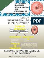Lesion Intrepitelial de Cuello Uterino