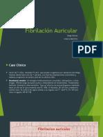 Fibrilación Auricular Caso Clinico