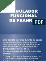 Regulador Funcional de Frankel