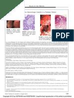 Severe Erosive Hemorrhagic Gastritis in a.1