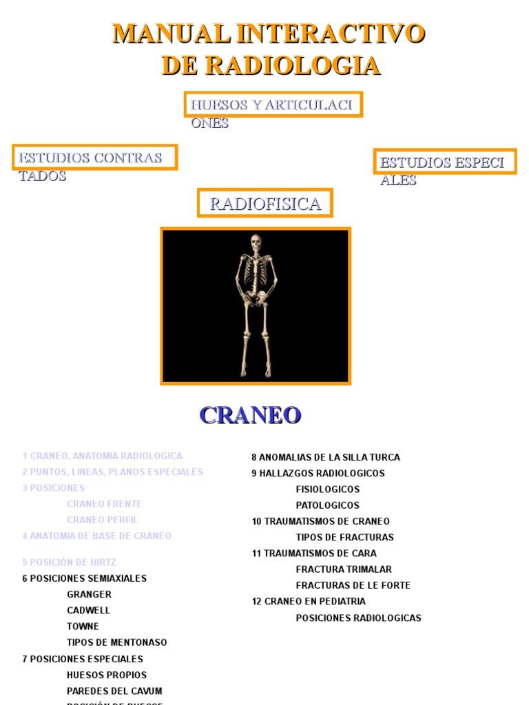 Manual de Radiologia Craneo