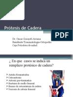 Prótesis de Cadera Cps