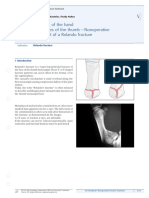 6 12 II Fractures of the Thumb Nonoperative Treatment of a Rolando Fracture