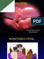 1. Monitoreo Fetal