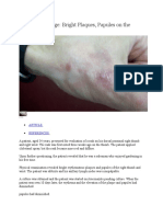 Clinical Challenge Bright Plaques, Papules on the Thumb