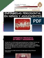 Exposición Enfermedad Periodontal en Niños y Adolescentes