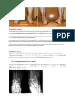 PÉ radiology