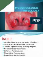 TRABAJO Mononucleosis