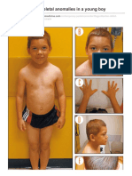 Oligodontia and Skeletal Anomalies in a Young Boy Contemporarypediatrics.modernmedicine.com