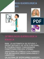 Semiologia Radiologica Del Torax