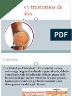 Celulitis y Trastornos de Circulación