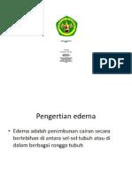 Edema Anak (Allin)