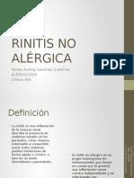 Rinitis No Alergica