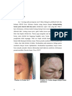 BAB III laporan  kasus kulit