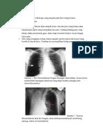 Pemeriksaan Radiologi Pneumothorax
