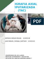 Tomografia Axial Computarizada TAC. Juan Manuel y Natasha