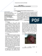 Decapitation in suicidal hanging.pdf