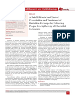 A Brief Editorial on Clinical Presentation and Treatment of Radiation Retinopathy Following Plaque Brachytherapy of Choroidal Melanoma