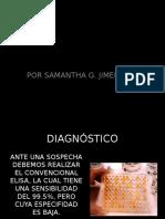 Enfermedad Por Virus de La Inmunodeficiencia Humana