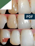 Clareamento de Dente Desvitalizado