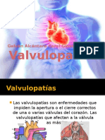 Valvulopatías 3