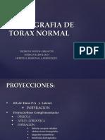 Diagnóstico Por Imagen - Radiografía de Tórax Normal