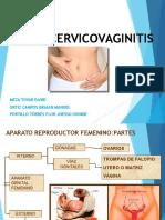 Vu Lv Ocer Vico Vaginitis