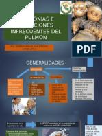 NEUMONIAS E INFECCIONES INFRECUENTES DEL PULMON exponer.pptx