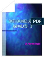 Ppt - Tooth Colored Inlays and Onlays - II
