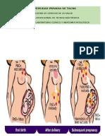 Profilaxis Rh en Gestantes