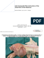 Allograft-Prosthesis Composite Reconstruction of the Proximal Part of the Humerus