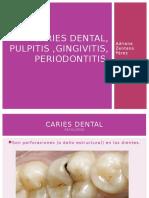 Caries Dental Hasta Pulpitis