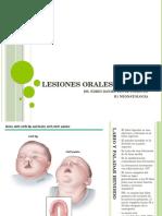 Lesiones Orales en RN