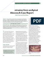 Severe Extrusion From an Apical Abscess_A Case Report