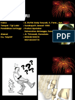 Gout n Hiperurisemia