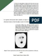 Equidistancia Endodoncia