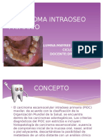 Carcinoma Intraoseo Primario-mayree Ramos Valdez